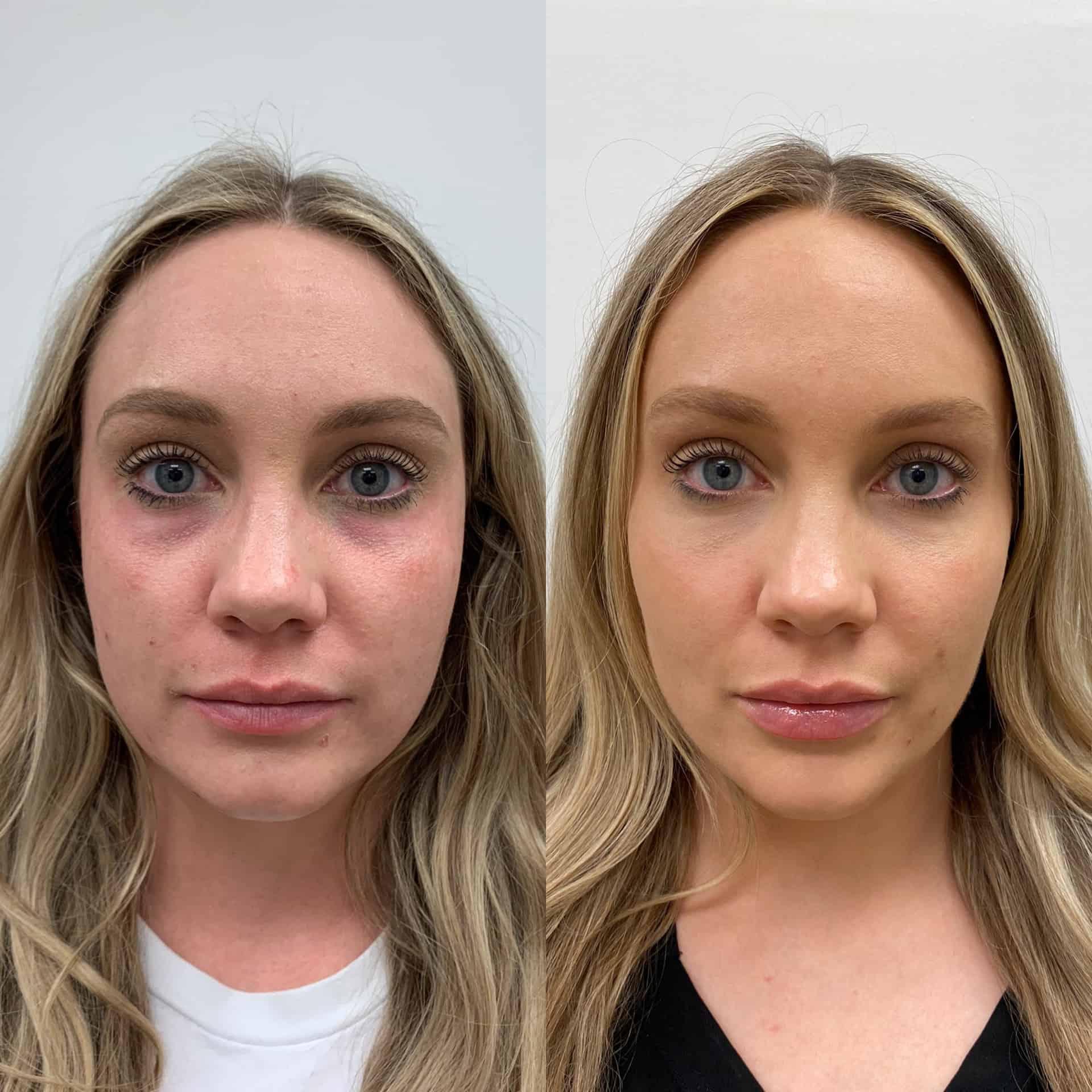 Full Face Rejuvenation with 5 syringes of filler