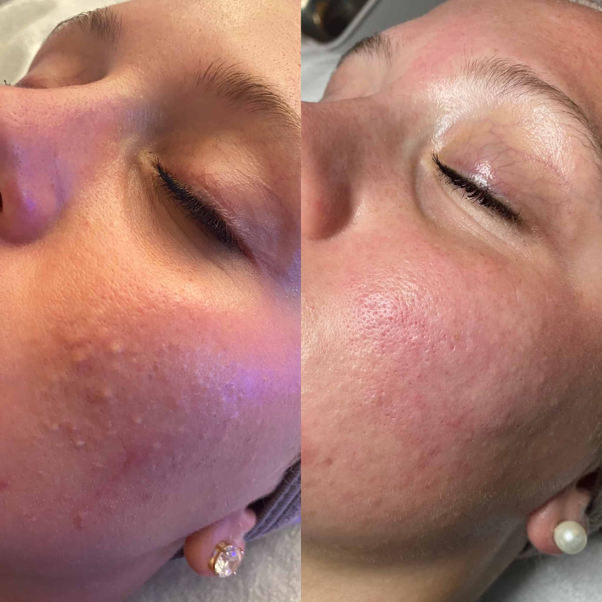 Dermal Infusion and Extractions
