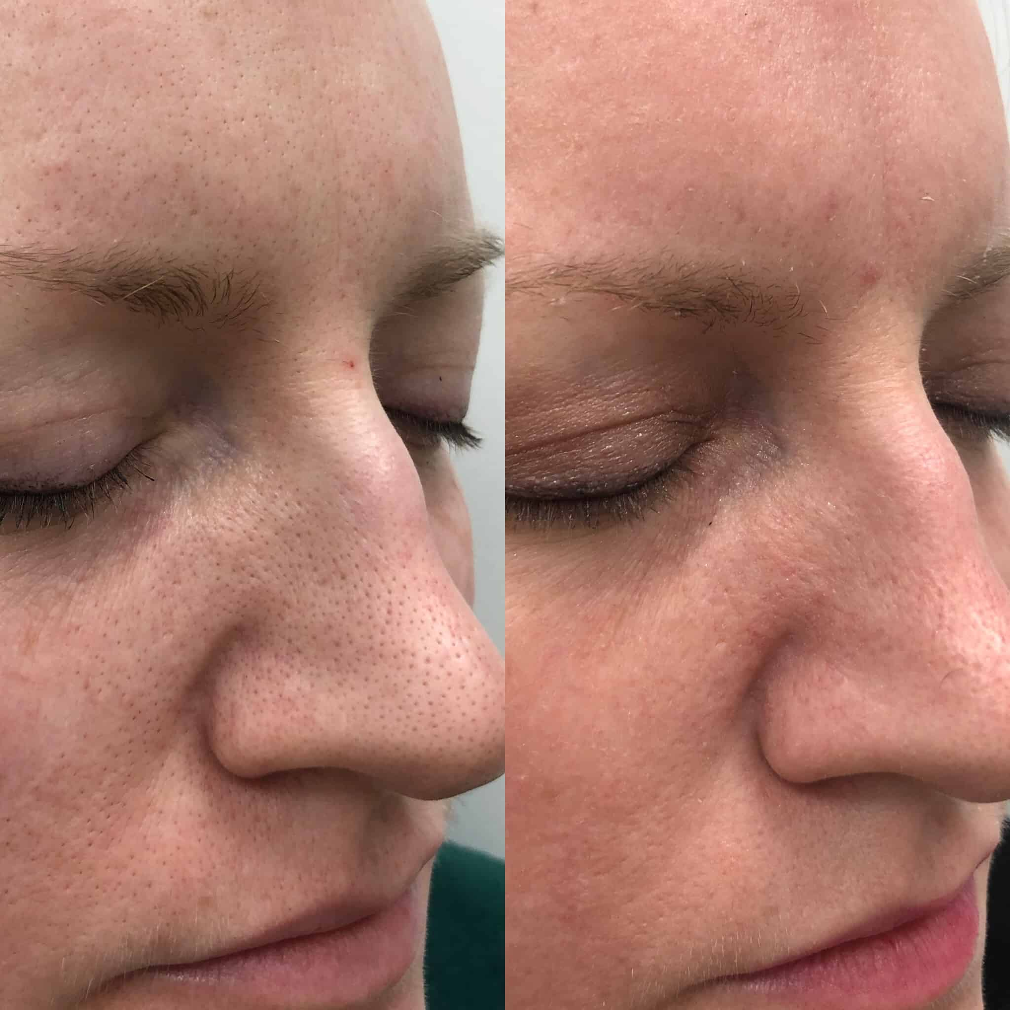 Halo Reduction in Pore Size